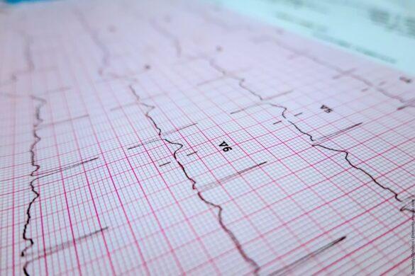 Die Entwicklung für EKG-Geräte hat über die letzten 20 Jahre mehrere technologische Fortschritte erlebt